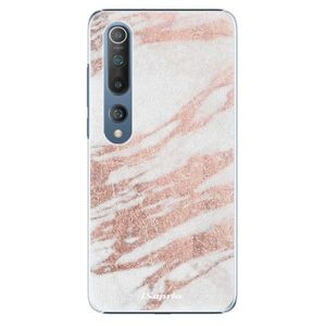 Plastové puzdro iSaprio - RoseGold 10 - Xiaomi Mi 10 / Mi 10 Pro vyobraziť